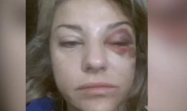 Екатерина после снятия побоев