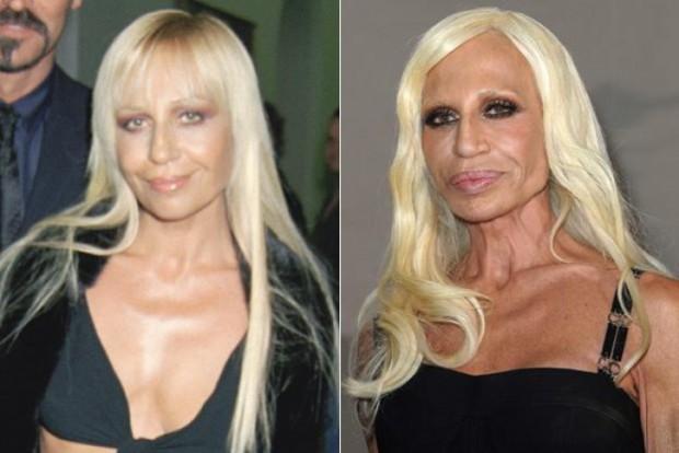 Фото Донателлы версаче до и после операции