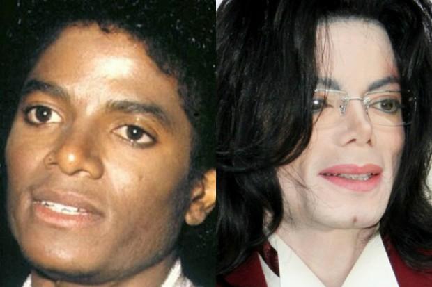 Фото Майкла Джексона до и после операции