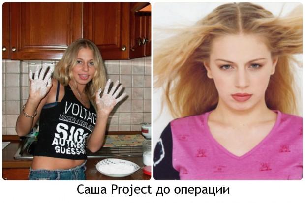 Саша Project до операции