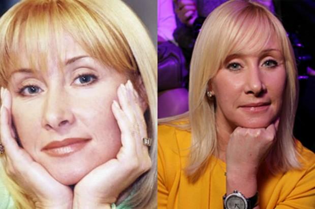 Фото Оксаны Пушкиной до и после операции
