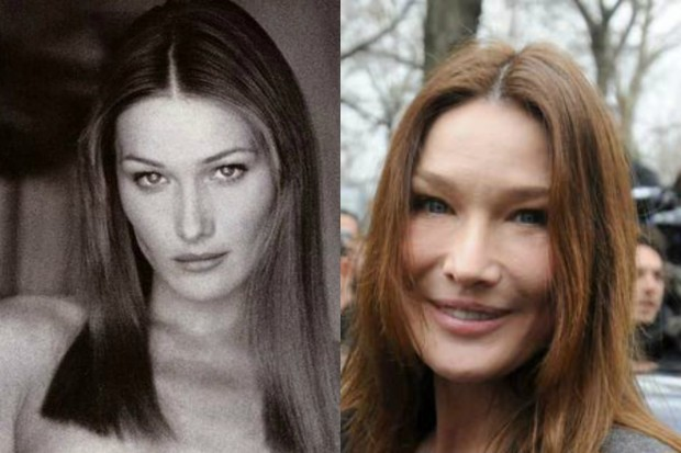 Фото Карлы Бруни до и после операции