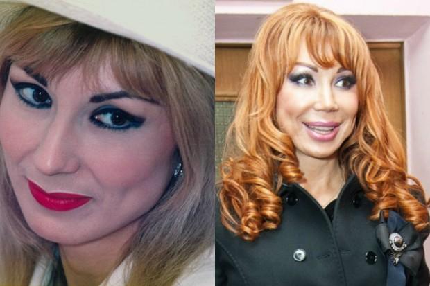 Фото Маши Распутиной до и после операции