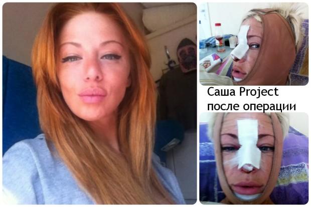Саша Project после операции