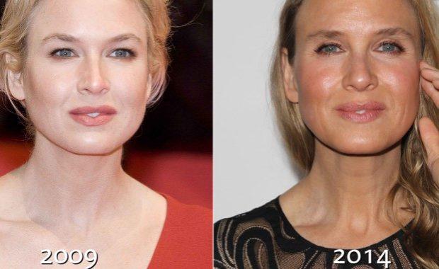 Фото Рене Зеллвегер до и после пластической операции