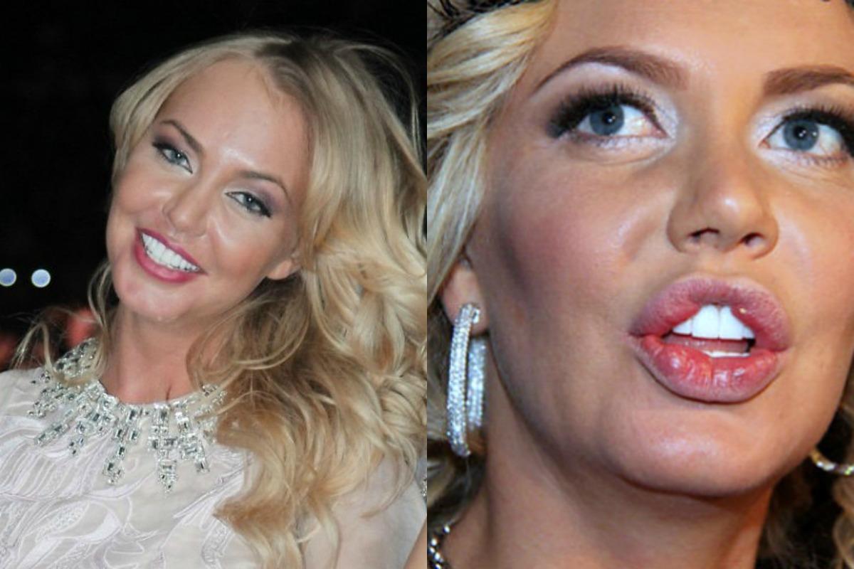 Знаменитости до и после пластической операции фото