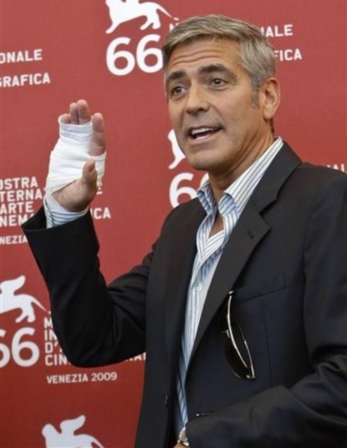 На Венецианский кинофестиваль Джордж Клуни приехал со сломанной рукой