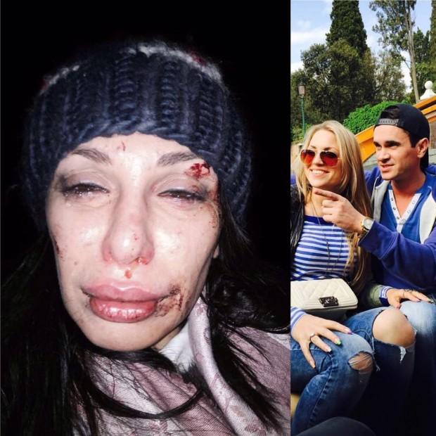 Избитая Елена Петрова
