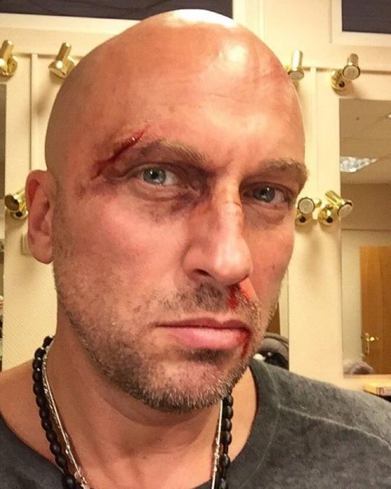 Нагиев показал своё избитое лицо