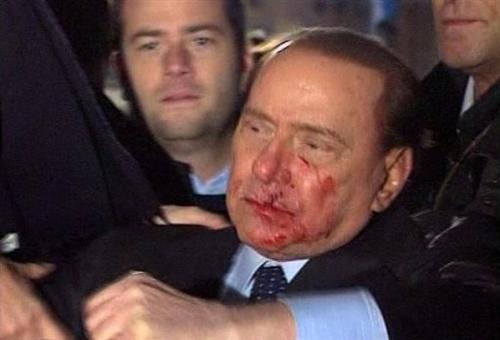 Сильвио Берлускони после нападения психически больного Массимо Тарталья