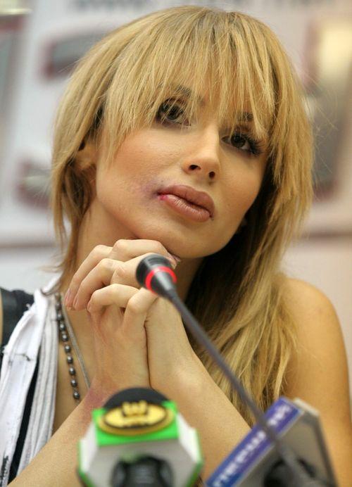 Светлана Лобода со следами побоев